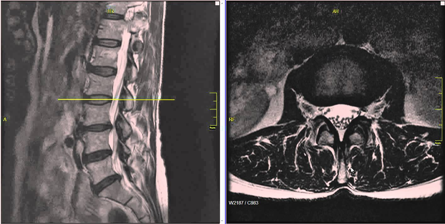 Hernia - cauze, evolutie, tratament